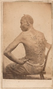 Image of enslaved man with scourged back